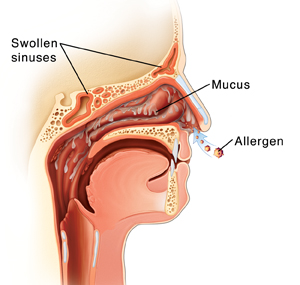 Cross section side view of head showing allergens entering nose, swollen nasal lining, and fluid dripping from nasal lining.