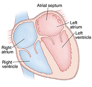 Front view cross section of heart showing atria on top and ventricles on bottom. Atrial septum is between right atrium and left atrium.